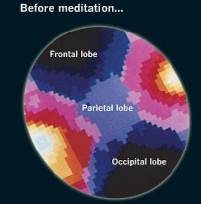польза медитации-1